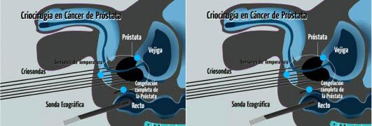 procedimiento quirúrgico criocirugía