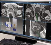 biopsia prostática transperineal por fusión